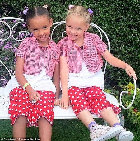 National Geographic разместила на обложке необычных близняшек. Фото