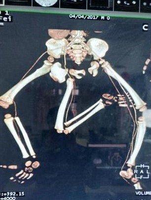 В Китае врачи провели операцию по удалению у ребенка третьей ноги