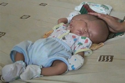 В Индонезии родился ребенок с двумя лицами. Видео