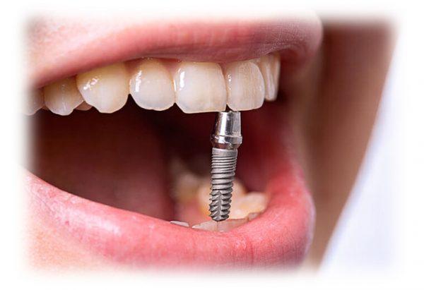 Имплантация зубов и прочие стоматологические услуги в Запорожье